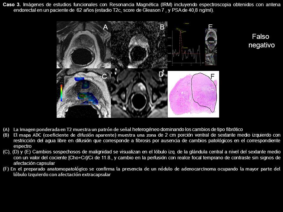 Caso 3. Imágenes de estudios funcionales con Resonancia Magnética (IRM) incluyendo espectroscopia obtenidos con antena endorectal en un paciente de 62 años (estadio T2c, score de Gleason 7 , y PSA de 40,8 ng/ml).