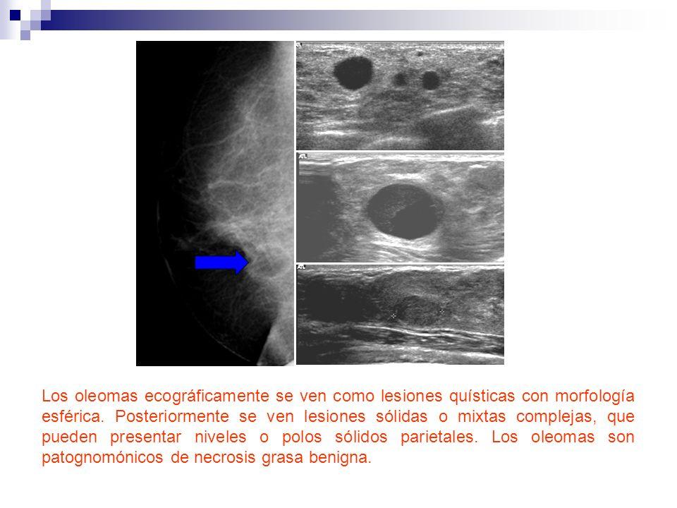 Los oleomas ecográficamente se ven como lesiones quísticas con morfología esférica.