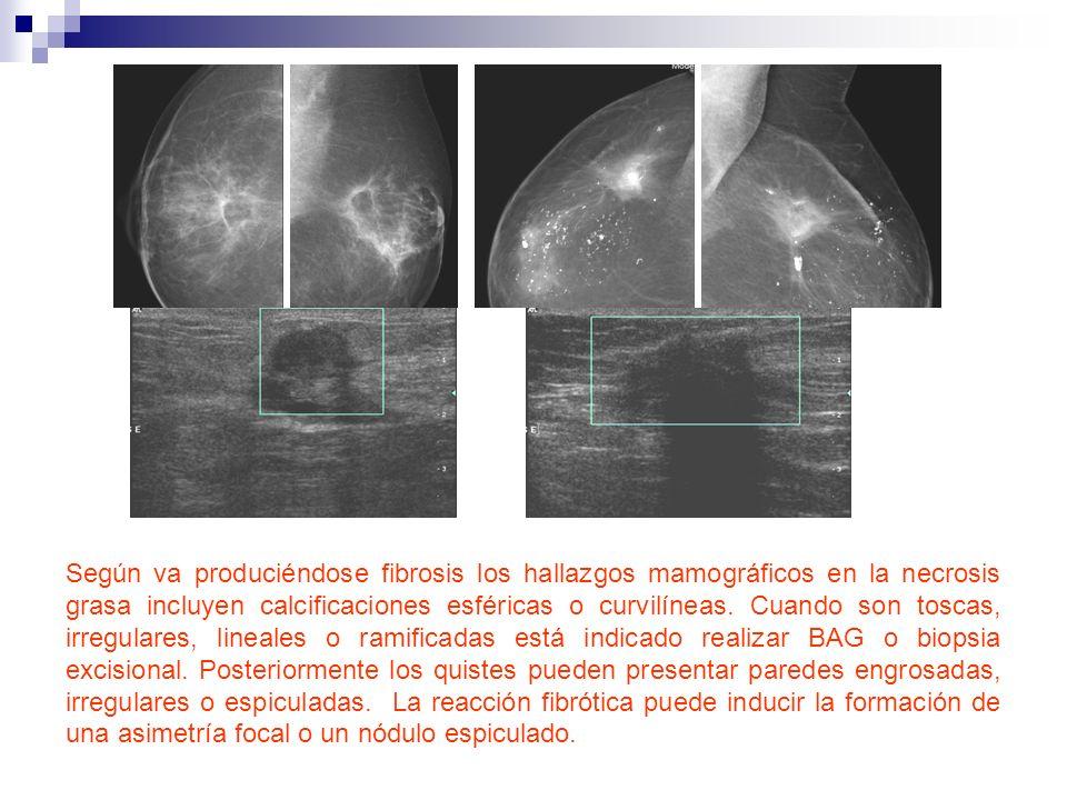 Según va produciéndose fibrosis los hallazgos mamográficos en la necrosis grasa incluyen calcificaciones esféricas o curvilíneas.