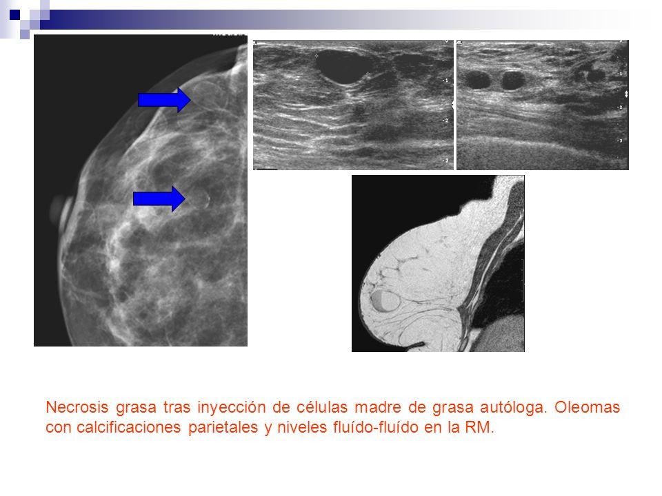 Necrosis grasa tras inyección de células madre de grasa autóloga