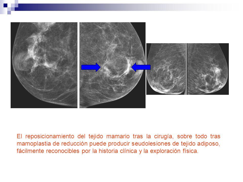 El reposicionamiento del tejido mamario tras la cirugía, sobre todo tras mamoplastia de reducción puede producir seudolesiones de tejido adiposo, fácilmente reconocibles por la historia clínica y la exploración física.