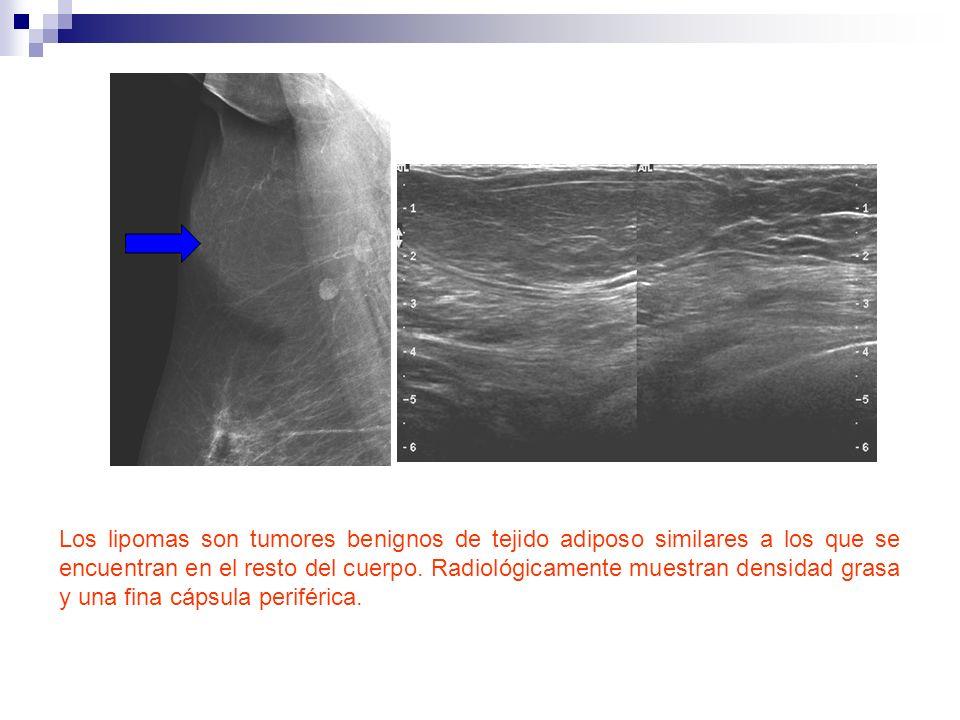 Los lipomas son tumores benignos de tejido adiposo similares a los que se encuentran en el resto del cuerpo.