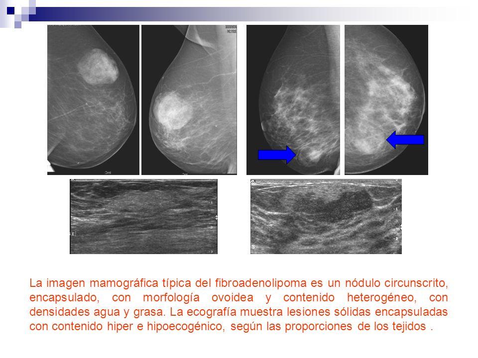 La imagen mamográfica típica del fibroadenolipoma es un nódulo circunscrito, encapsulado, con morfología ovoidea y contenido heterogéneo, con densidades agua y grasa.