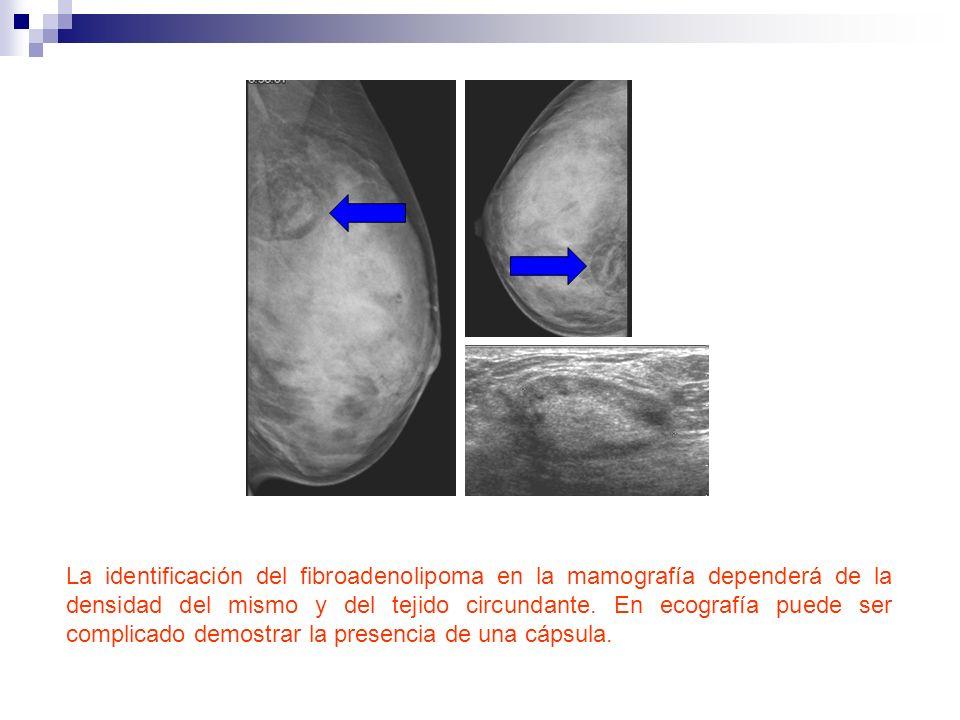 La identificación del fibroadenolipoma en la mamografía dependerá de la densidad del mismo y del tejido circundante.