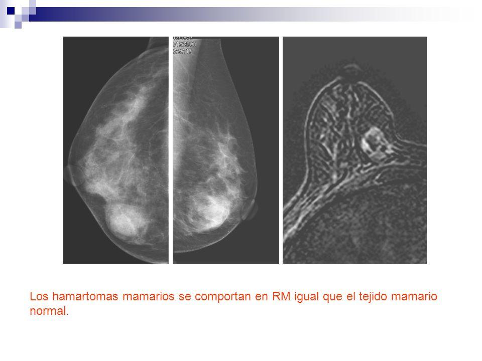 Los hamartomas mamarios se comportan en RM igual que el tejido mamario normal.
