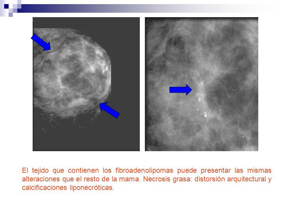 El tejido que contienen los fibroadenolipomas puede presentar las mismas alteraciones que el resto de la mama.