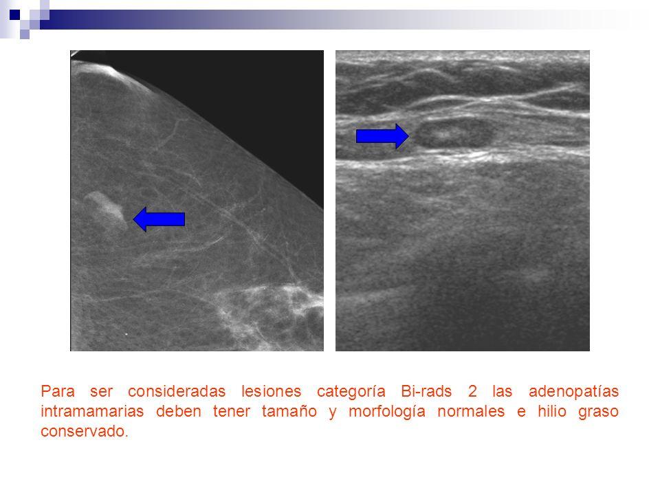 Para ser consideradas lesiones categoría Bi-rads 2 las adenopatías intramamarias deben tener tamaño y morfología normales e hilio graso conservado.