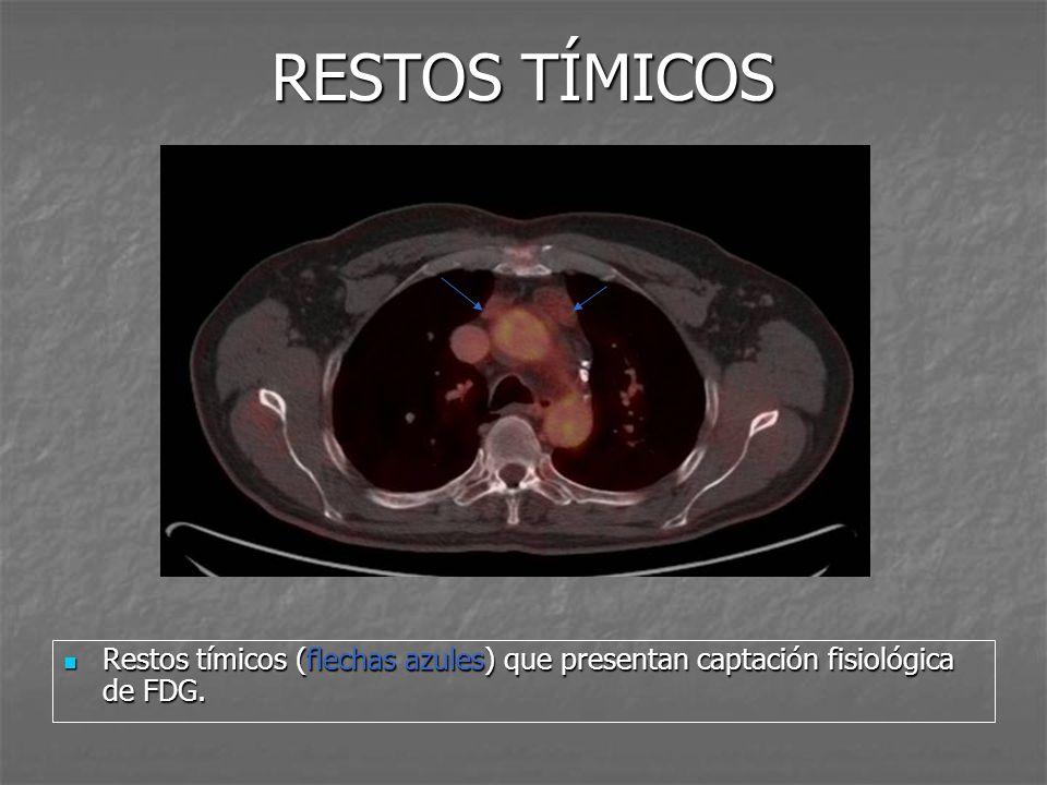 RESTOS TÍMICOS Restos tímicos (flechas azules) que presentan captación fisiológica de FDG.
