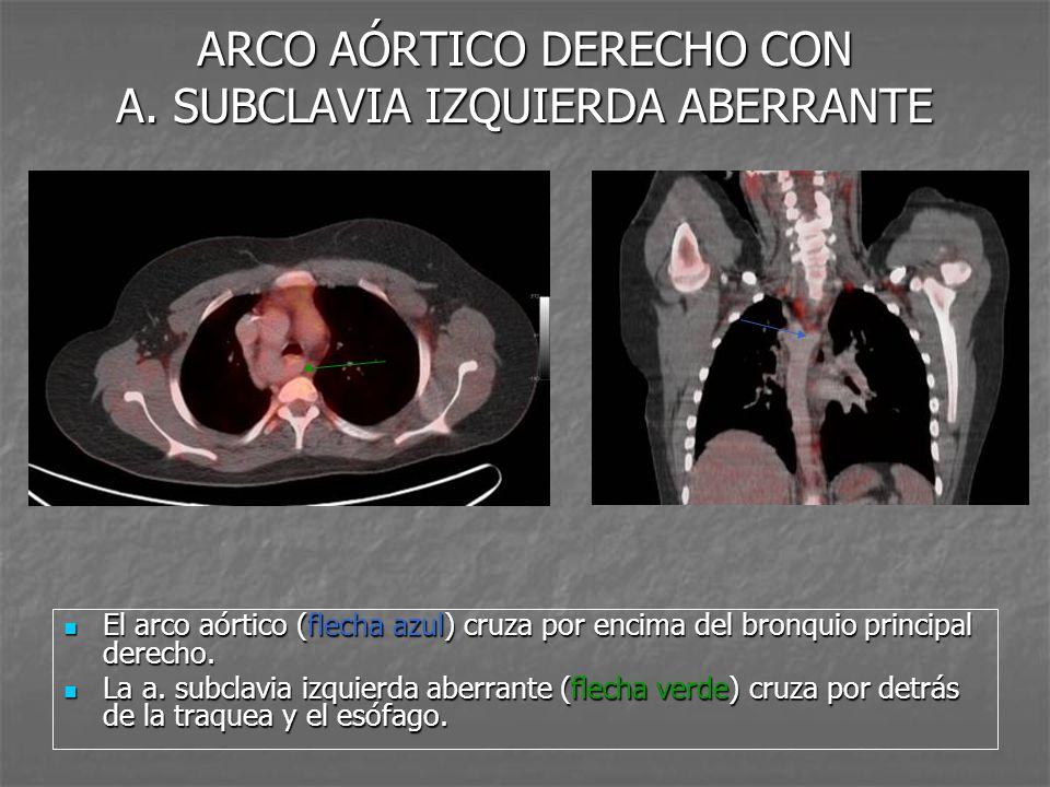 ARCO AÓRTICO DERECHO CON A. SUBCLAVIA IZQUIERDA ABERRANTE