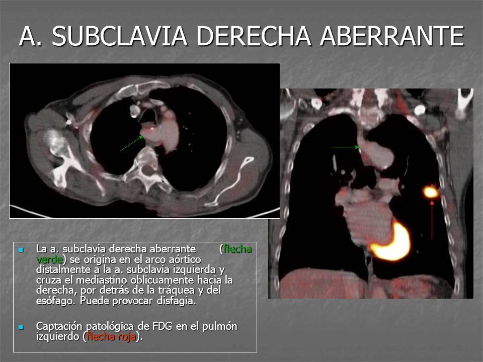 A. SUBCLAVIA DERECHA ABERRANTE