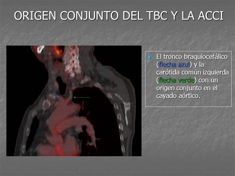 ORIGEN CONJUNTO DEL TBC Y LA ACCI