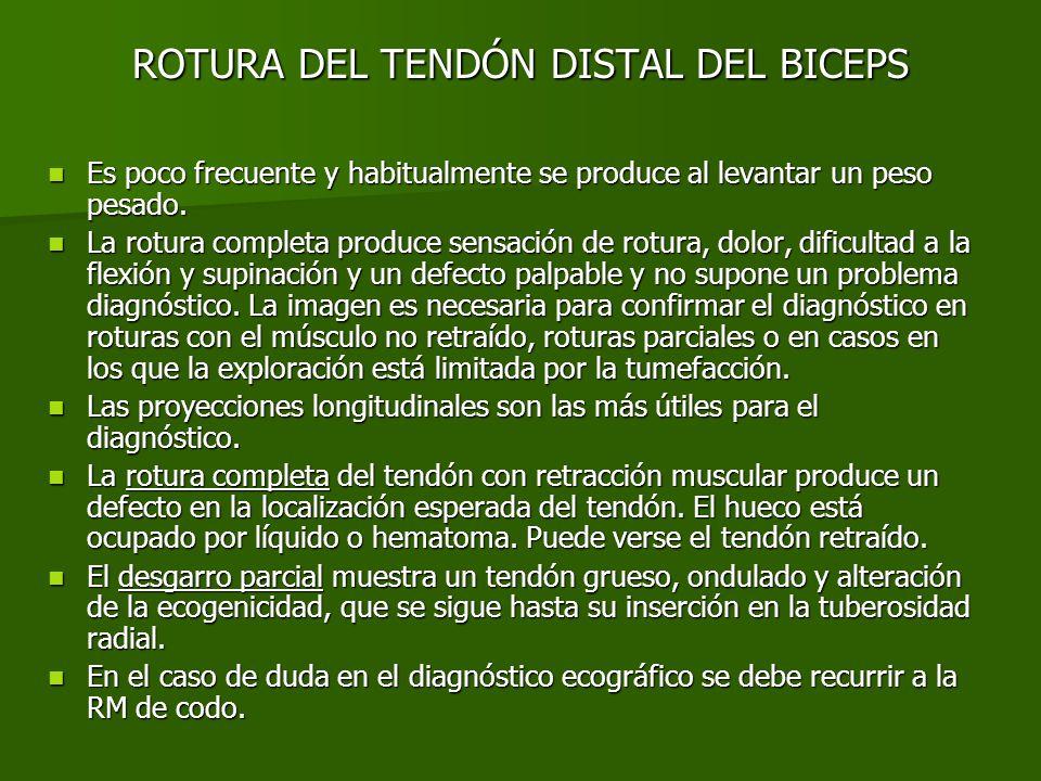 ROTURA DEL TENDÓN DISTAL DEL BICEPS
