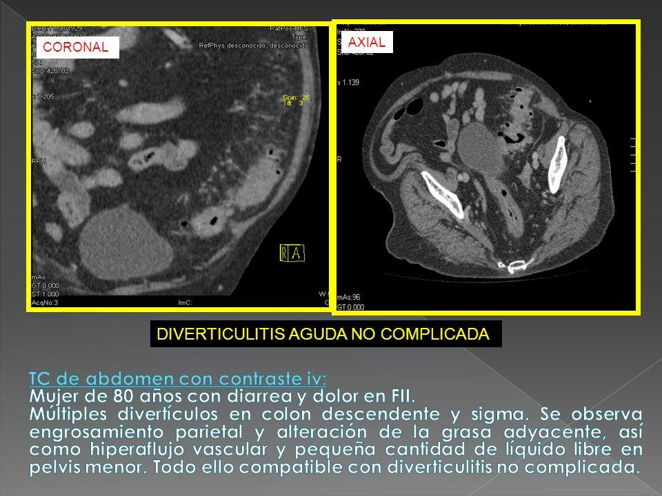 Mujer de 80 años con diarrea y dolor en FII.