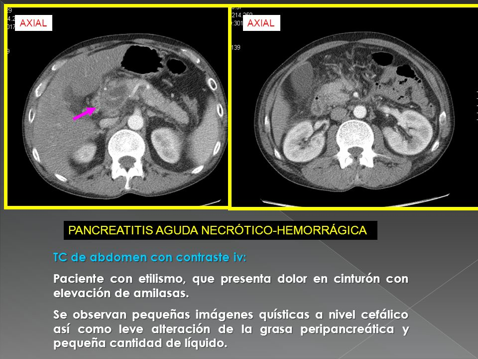 PANCREATITIS AGUDA NECRÓTICO-HEMORRÁGICA