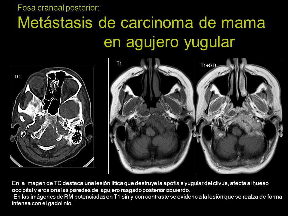 Fosa craneal posterior: Metástasis de carcinoma de mama