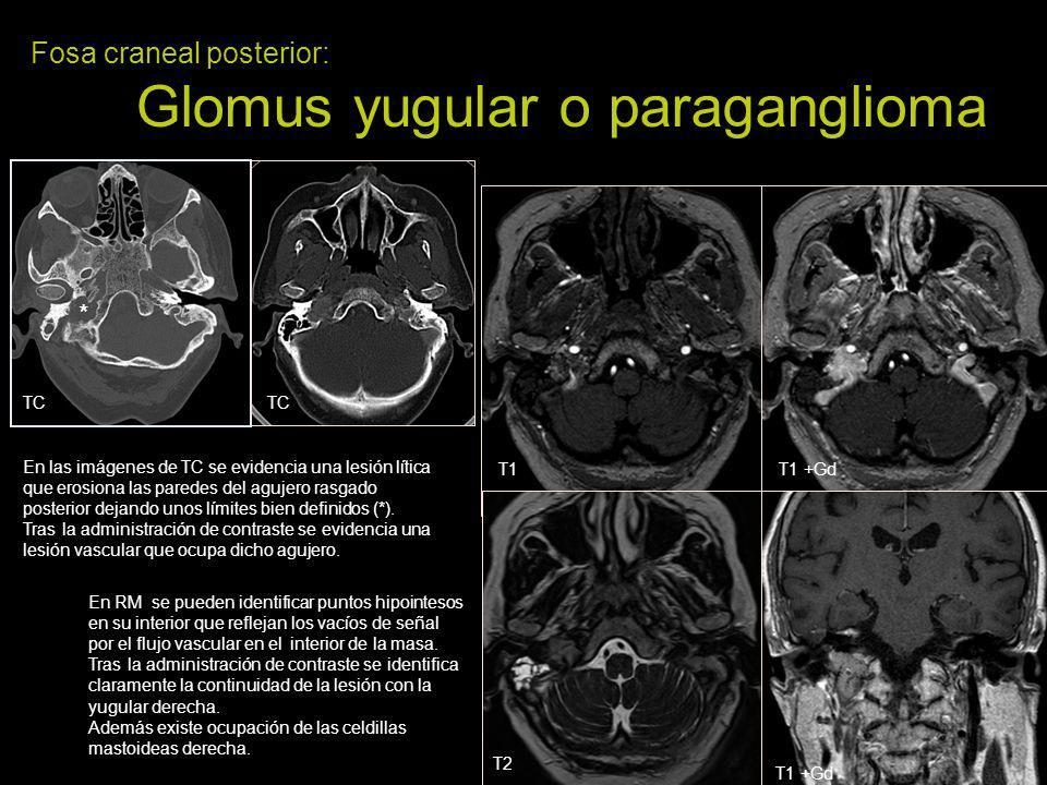 Fosa craneal posterior: Glomus yugular o paraganglioma