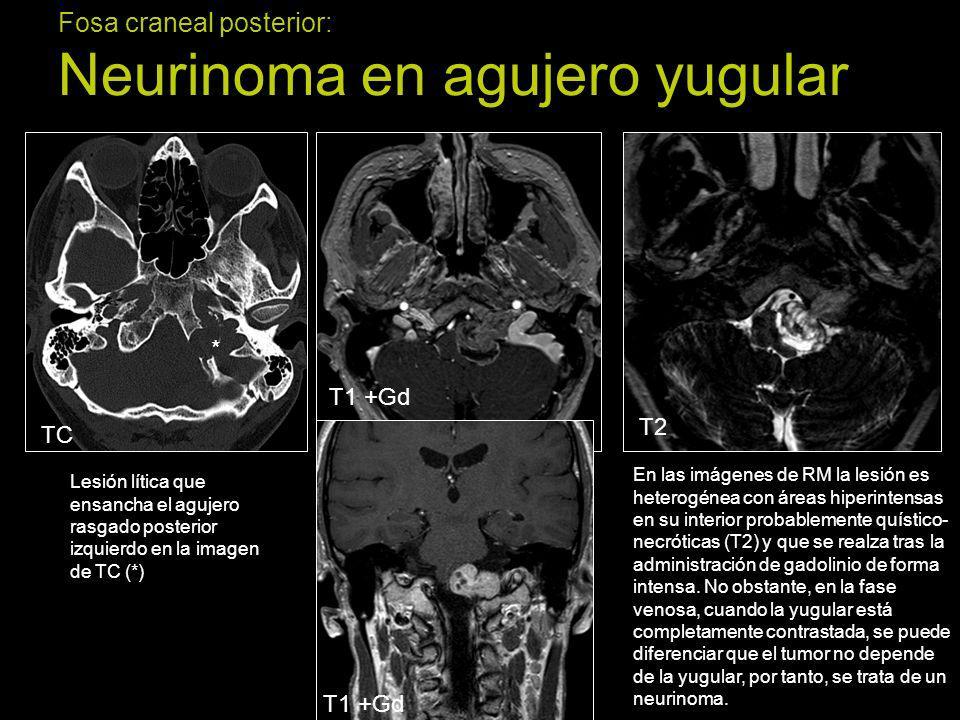 Fosa craneal posterior: Neurinoma en agujero yugular