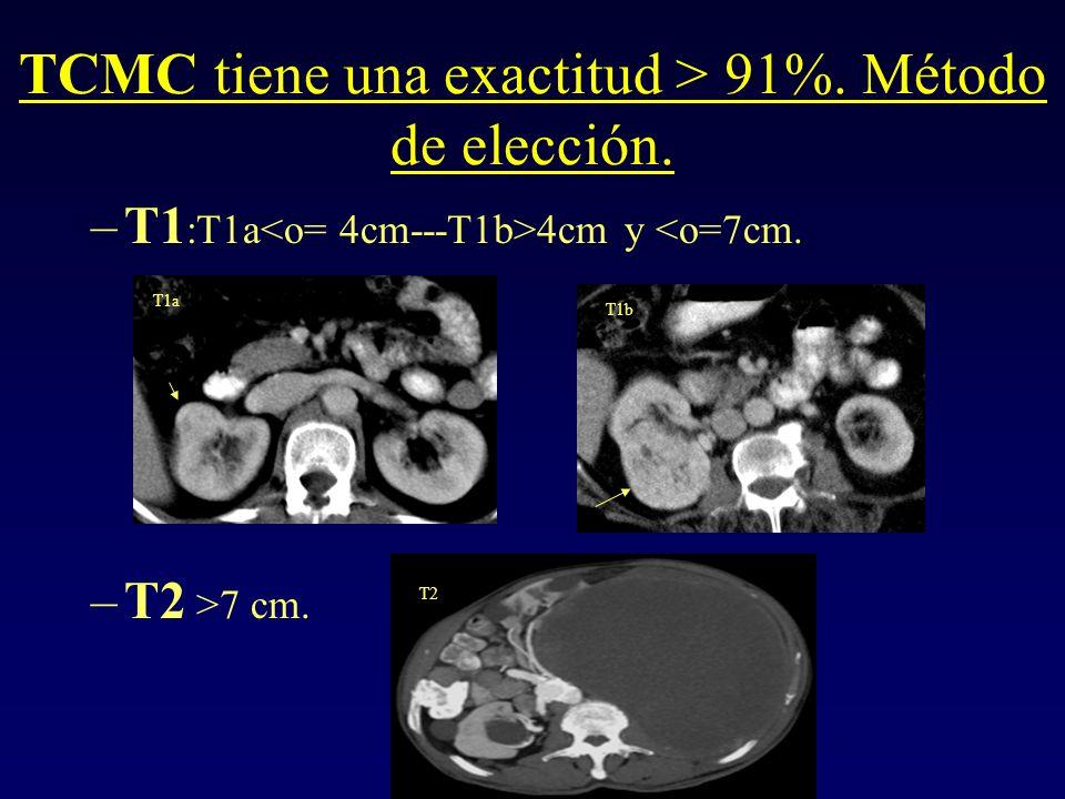 TCMC tiene una exactitud > 91%. Método de elección.