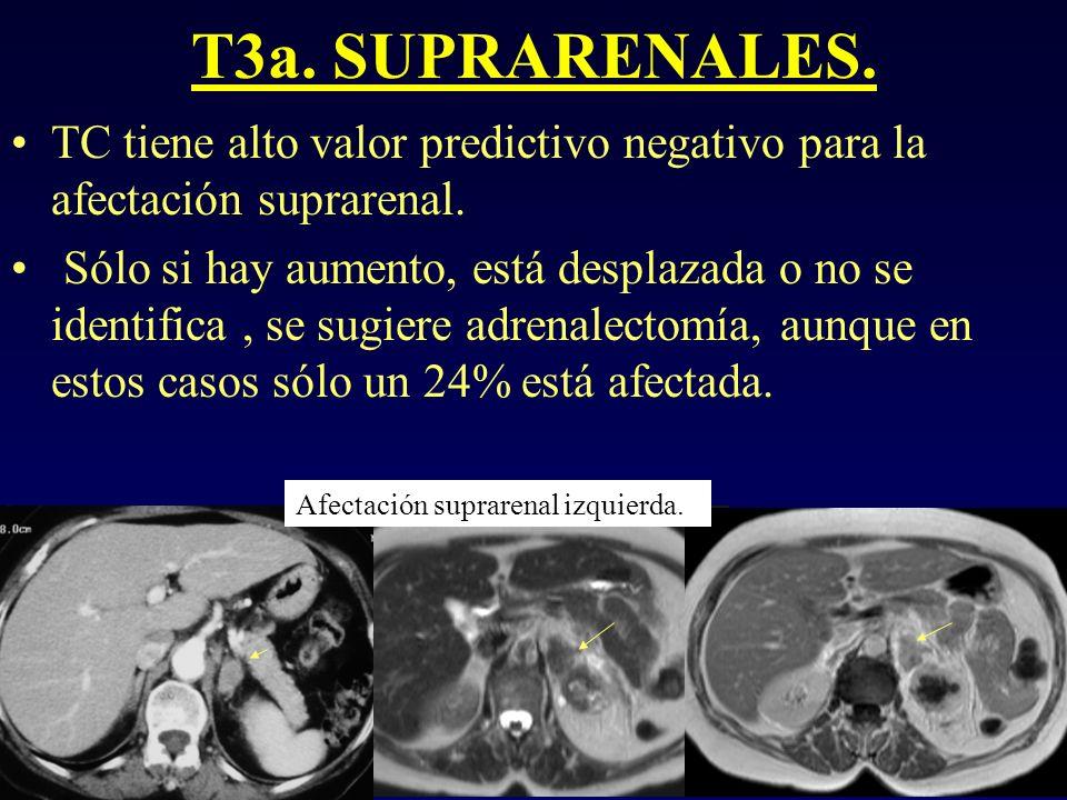 T3a. SUPRARENALES. TC tiene alto valor predictivo negativo para la afectación suprarenal.