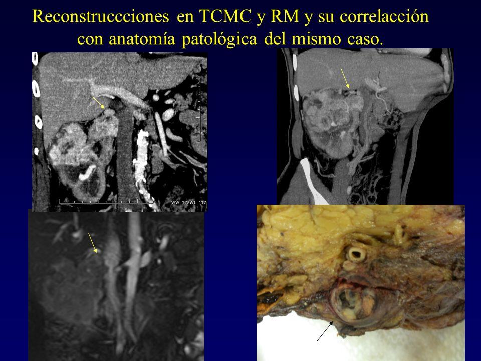 Reconstruccciones en TCMC y RM y su correlacción con anatomía patológica del mismo caso.