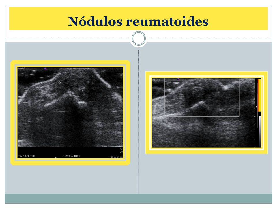 Nódulos reumatoides