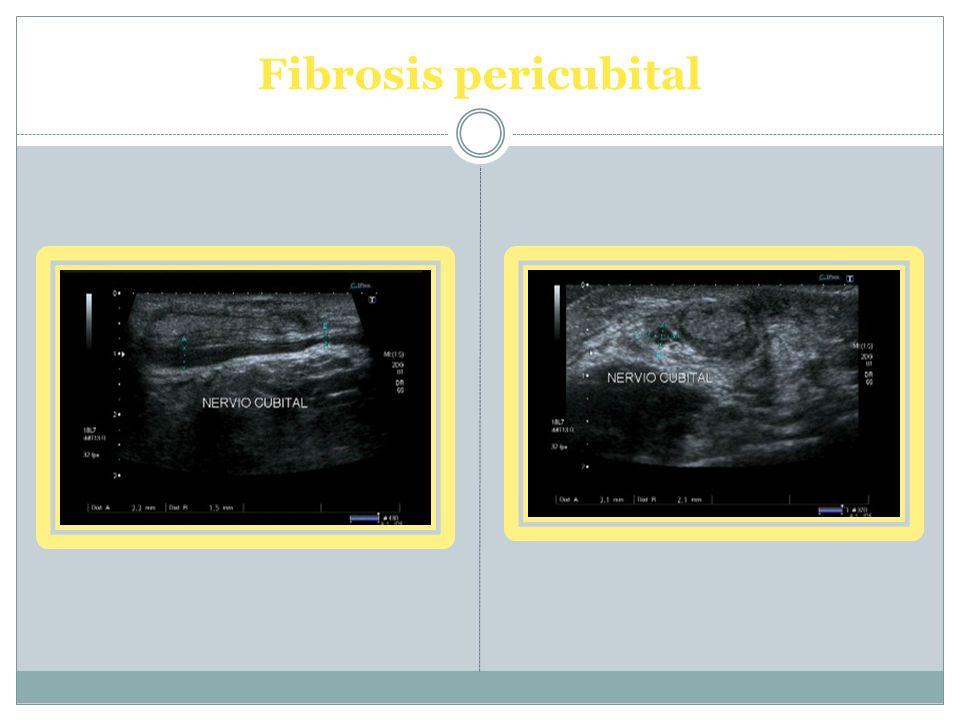 Fibrosis pericubital