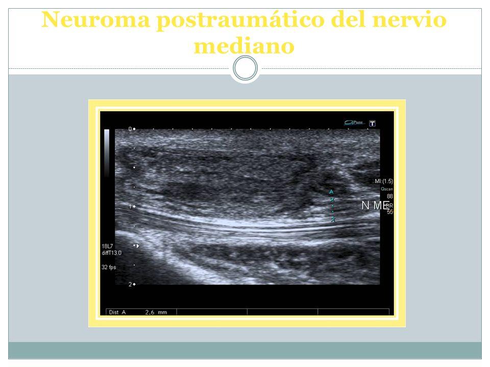 Neuroma postraumático del nervio mediano