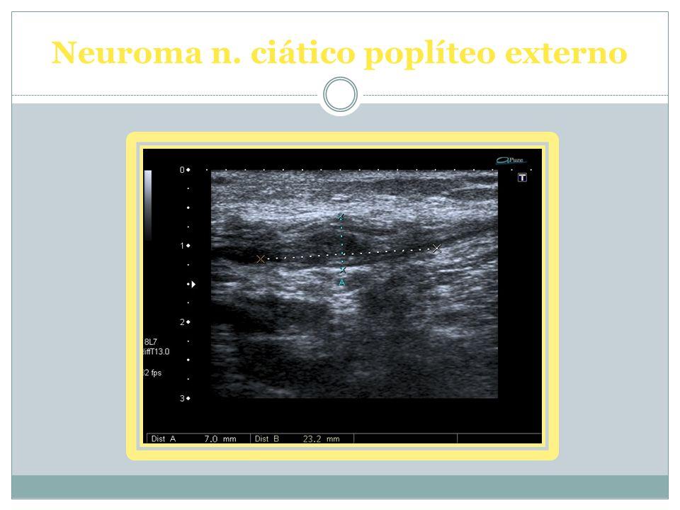 Neuroma n. ciático poplíteo externo