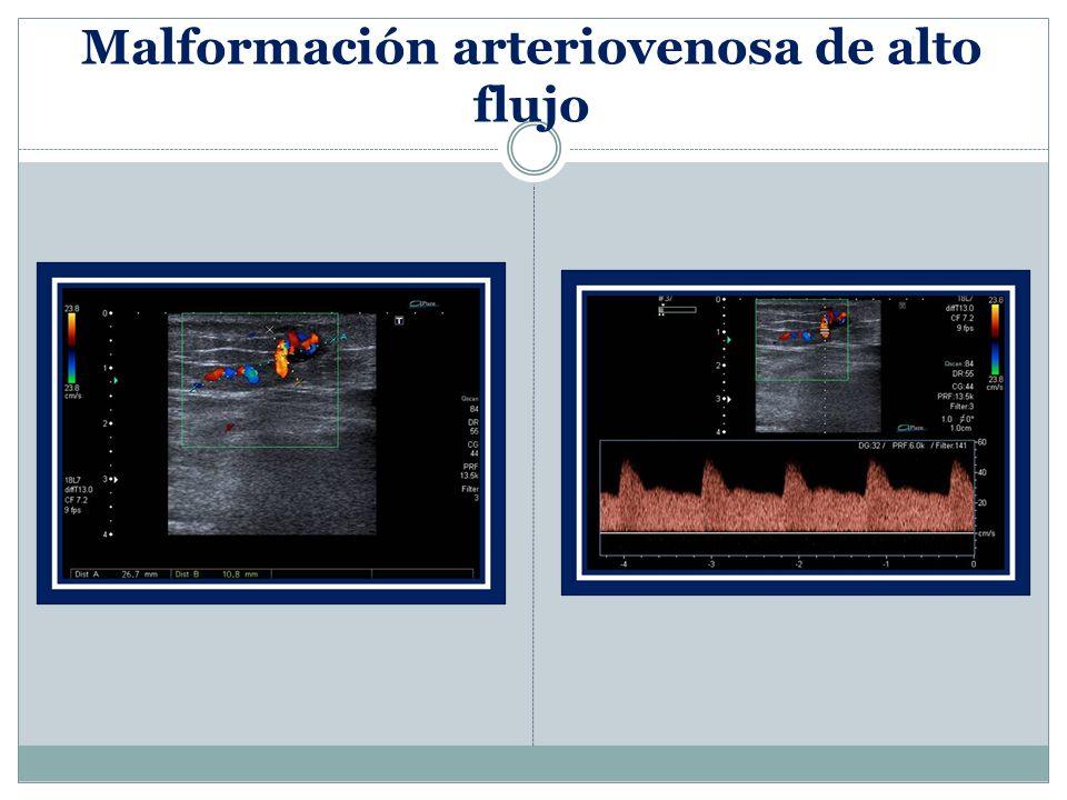 Malformación arteriovenosa de alto flujo
