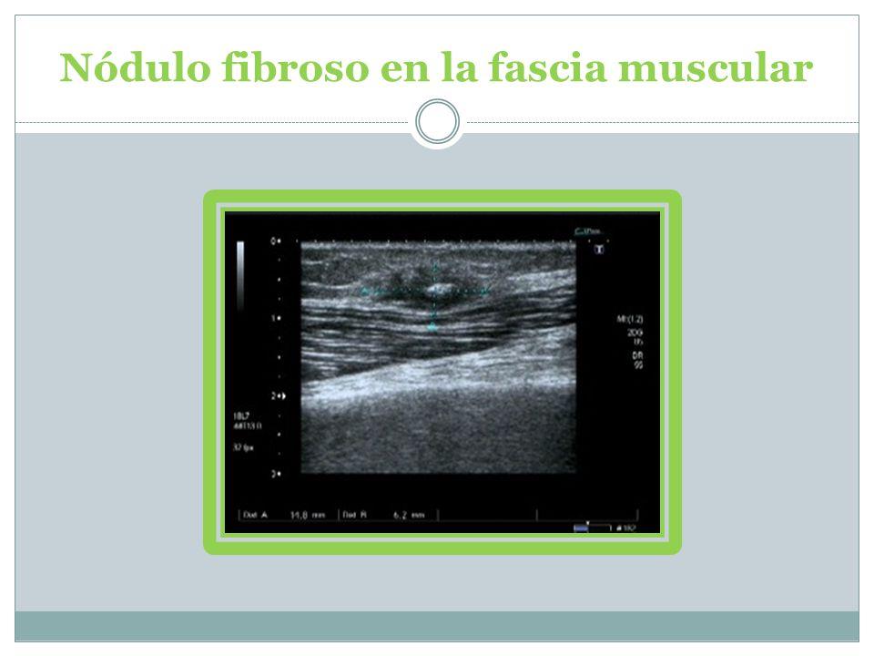 Nódulo fibroso en la fascia muscular