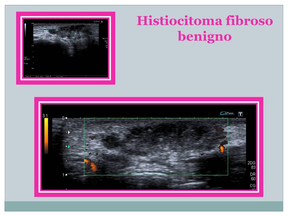 Histiocitoma fibroso benigno