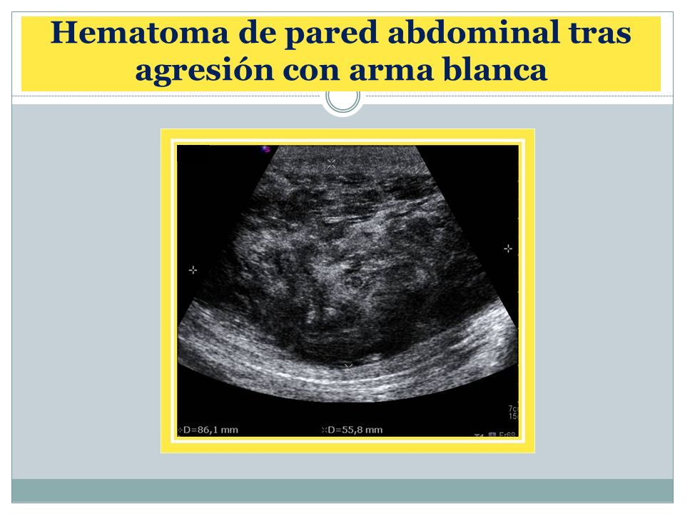 Hematoma de pared abdominal tras agresión con arma blanca