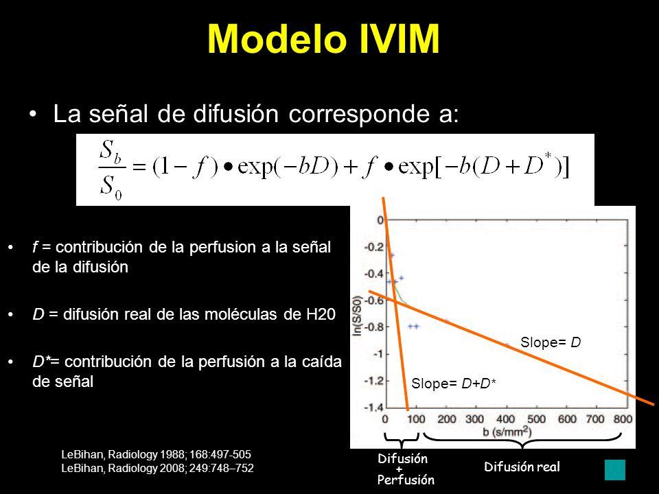 Modelo IVIM La señal de difusión corresponde a:
