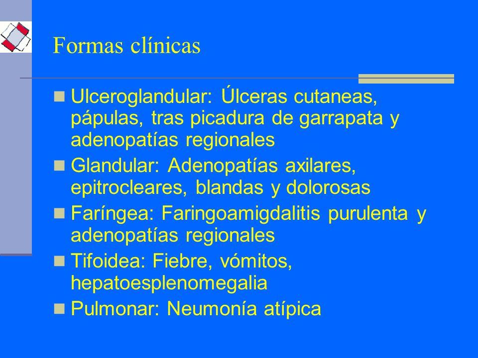 Formas clínicas Ulceroglandular: Úlceras cutaneas, pápulas, tras picadura de garrapata y adenopatías regionales.