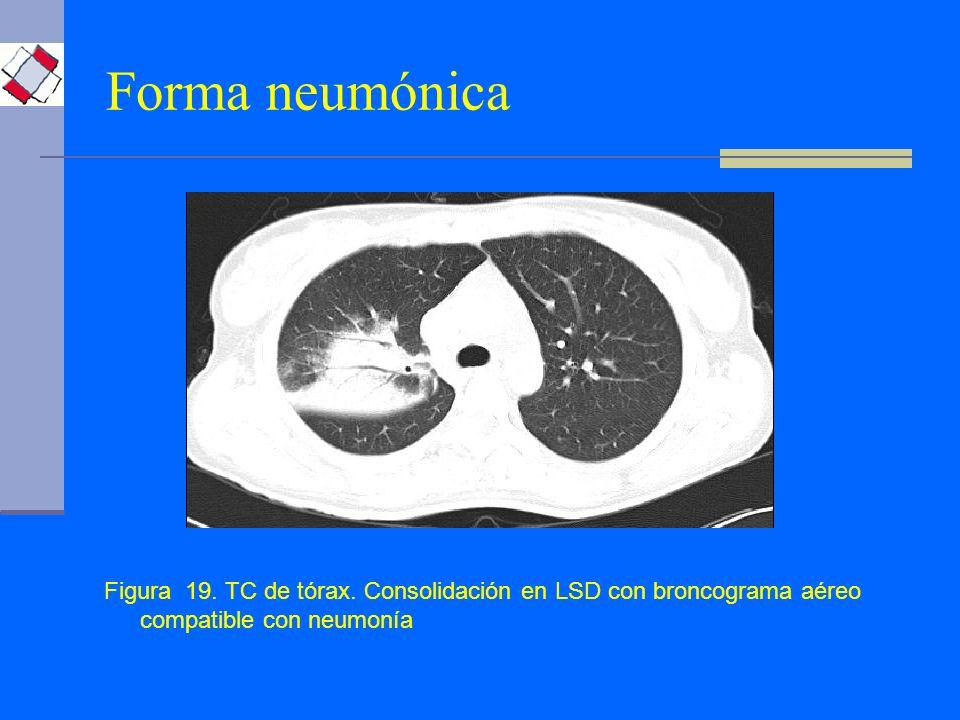 Forma neumónica Figura 19. TC de tórax.