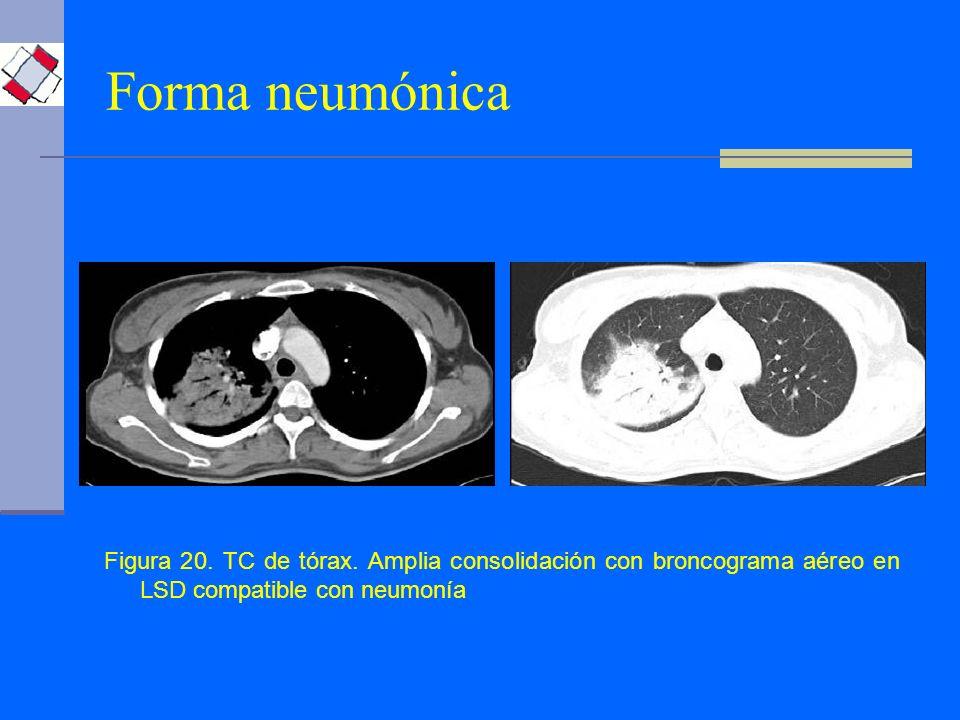 Forma neumónica Figura 20. TC de tórax.