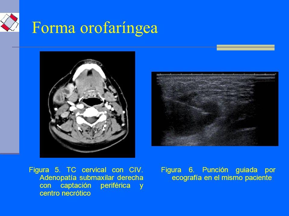 Forma orofaríngea Figura 5. TC cervical con CIV. Adenopatía submaxilar derecha con captación periférica y centro necrótico.