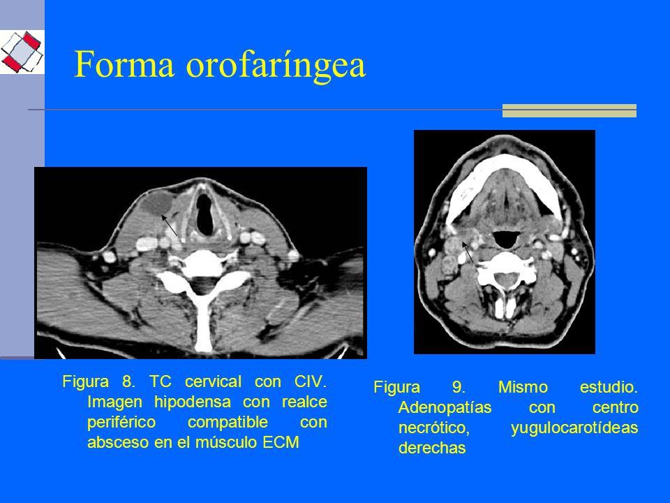Forma orofaríngea Figura 8. TC cervical con CIV. Imagen hipodensa con realce periférico compatible con absceso en el músculo ECM.