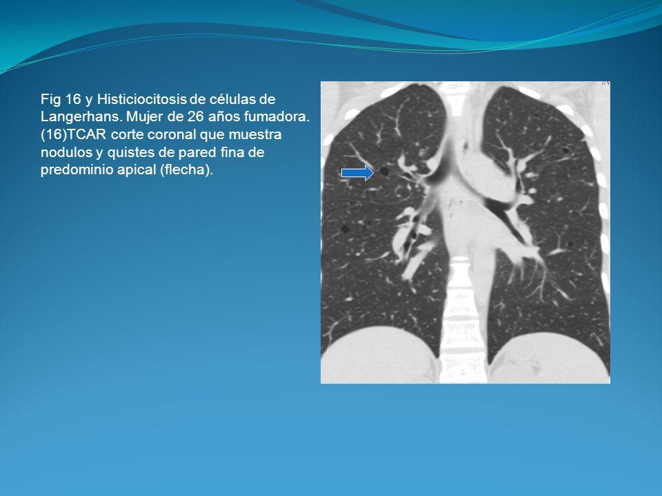 Fig 16 y Histiciocitosis de células de Langerhans