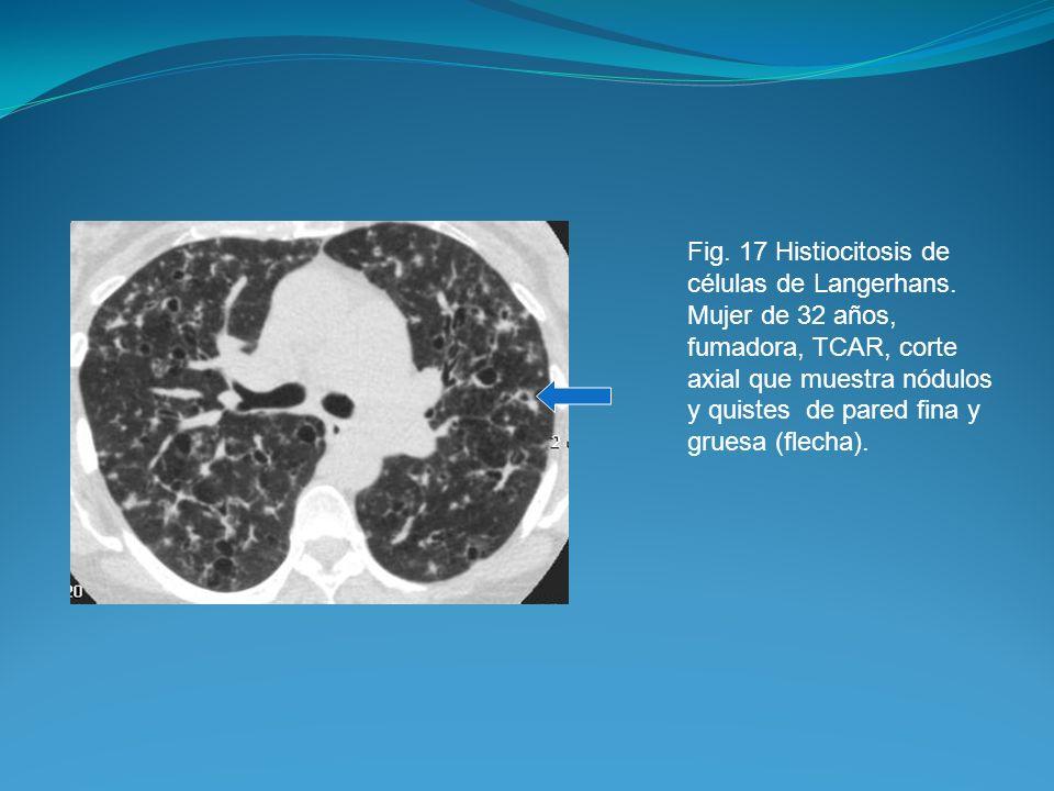 Fig. 17 Histiocitosis de células de Langerhans