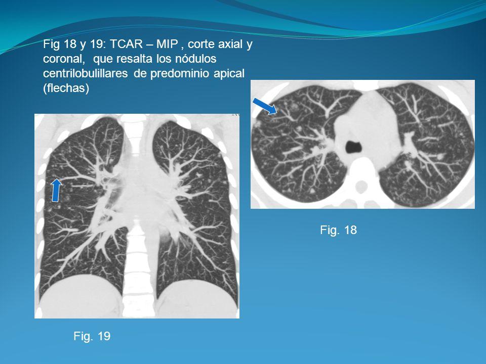 Fig 18 y 19: TCAR – MIP , corte axial y coronal, que resalta los nódulos centrilobulillares de predominio apical (flechas)