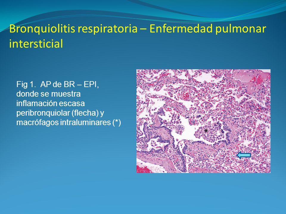 Bronquiolitis respiratoria – Enfermedad pulmonar intersticial