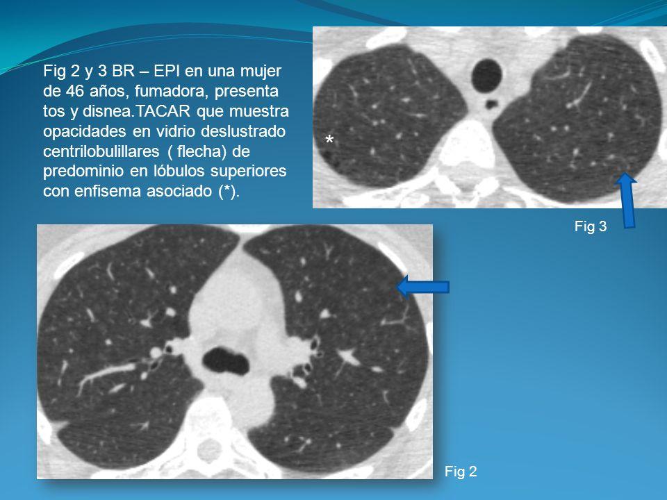 Fig 2 y 3 BR – EPI en una mujer de 46 años, fumadora, presenta tos y disnea.TACAR que muestra opacidades en vidrio deslustrado centrilobulillares ( flecha) de predominio en lóbulos superiores con enfisema asociado (*).