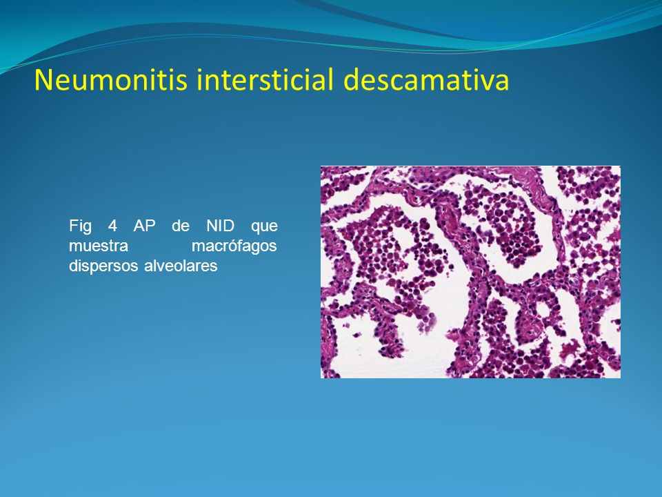 Neumonitis intersticial descamativa