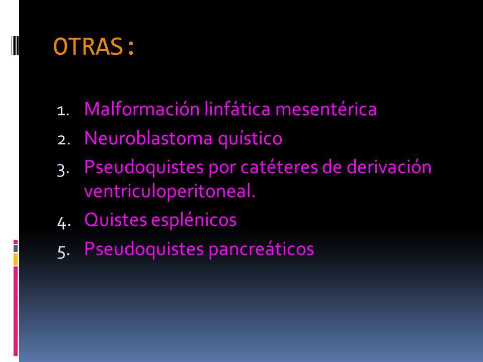 OTRAS: Malformación linfática mesentérica Neuroblastoma quístico