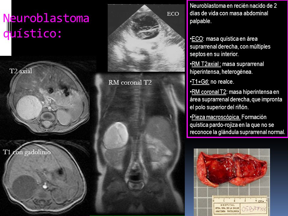 Neuroblastoma quístico: