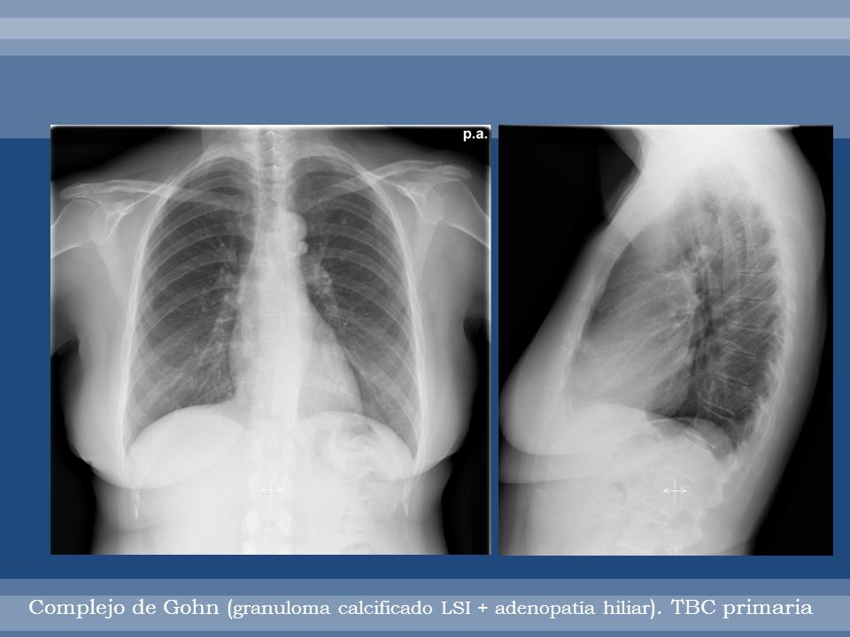 Complejo Gohn: tbc primaria