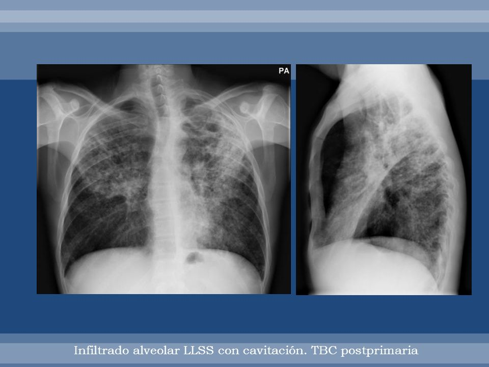 Infiltrado alveolar LLSS con cavitación. TBC postprimaria