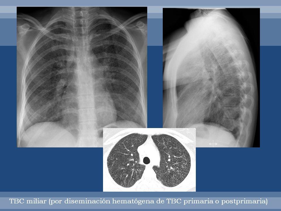 TBC MILIAR: diseminación hematógena de tbc rpimaria o postprimaria