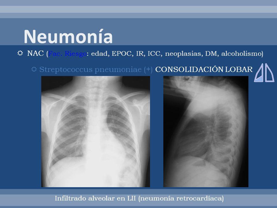 Neumonía NAC (Fac. Riesgo: edad, EPOC, IR, ICC, neoplasias, DM, alcoholismo) Streptococcus pneumoniae (+) CONSOLIDACIÓN LOBAR.